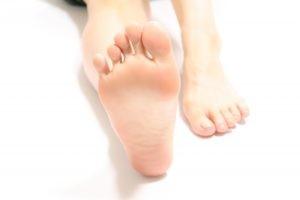 足底筋膜炎-300x200